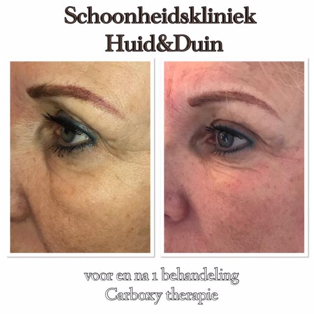 Carboxy therapie behandeling van de ogen.