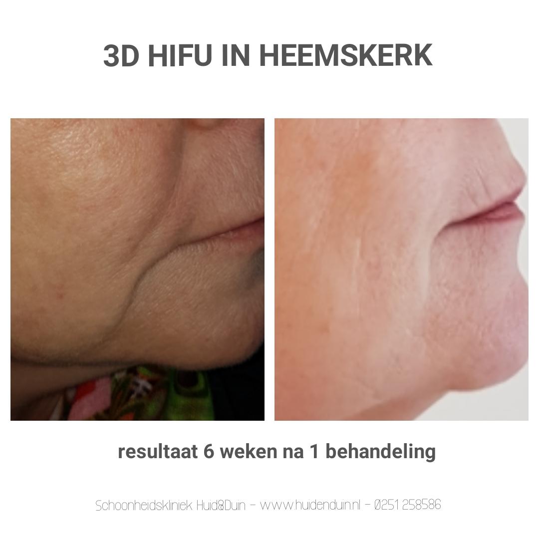 3D Hifu behandeling resultaat na 6 weken