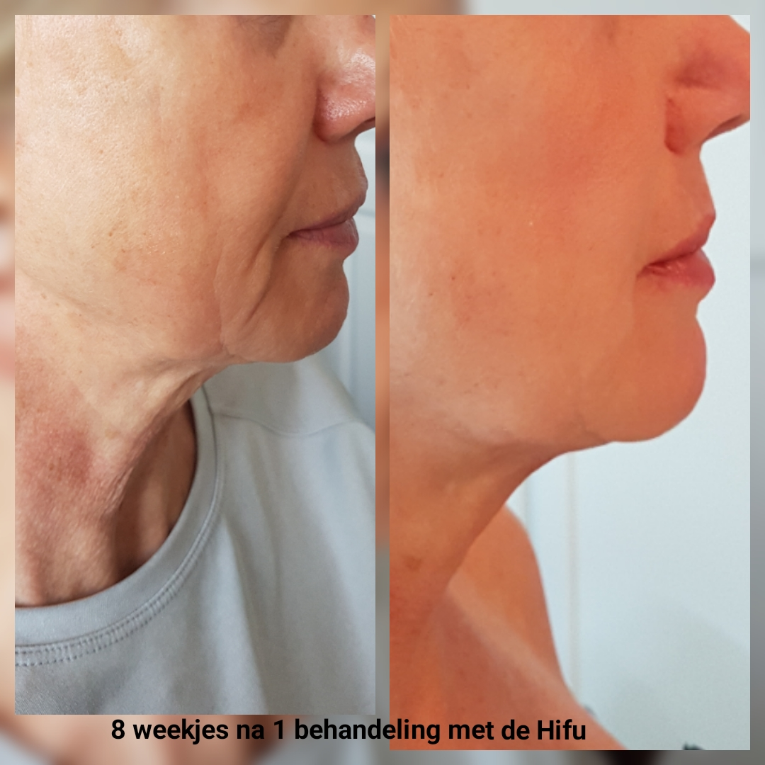 3D Hifu behandeling resultaat na 8 weken