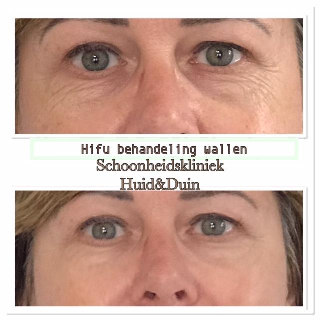 3D Hifu behandeling voor en na wallen